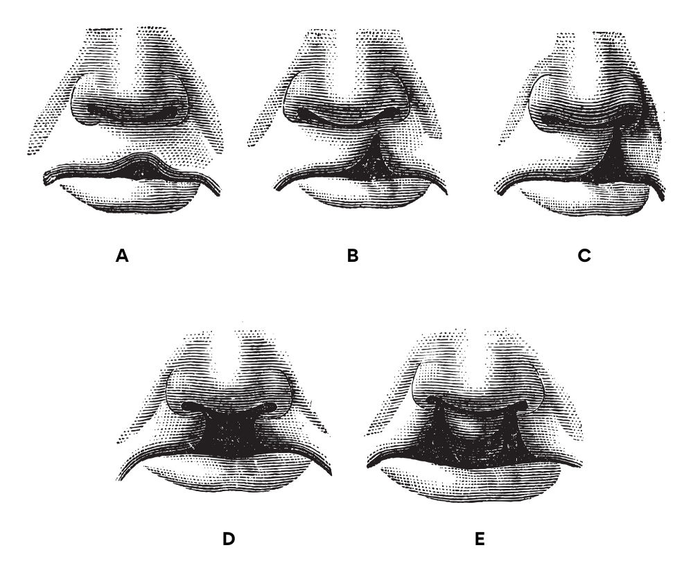 Cleft lip and palate - Types and Treatment